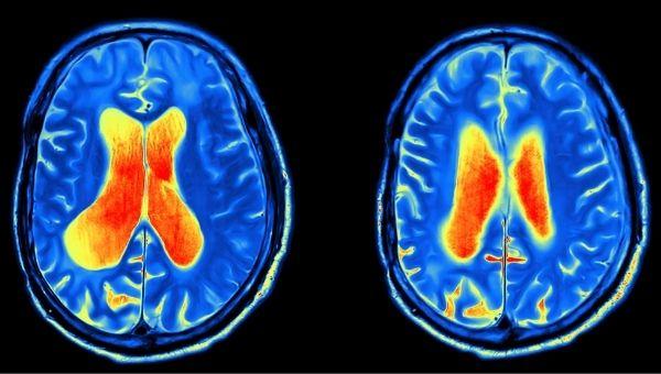 Мозг прилежащее тело